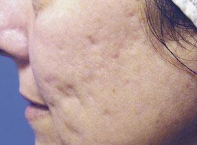 acne-cicatrices-antes