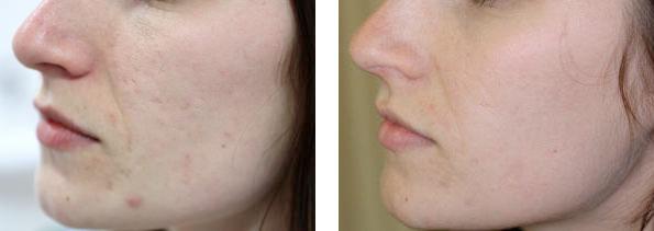 antes-y-despues-eliminacion-de-cicatrices-de-acne