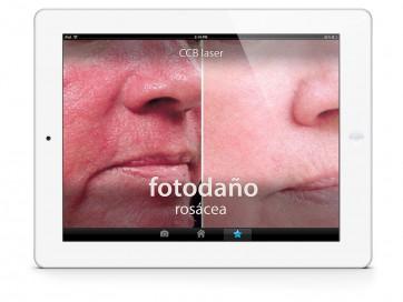 iPad-rosacea